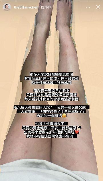 手脚又痒又丑!「彦婷」公开双腿「全是疤痕」:真的很难过插图3