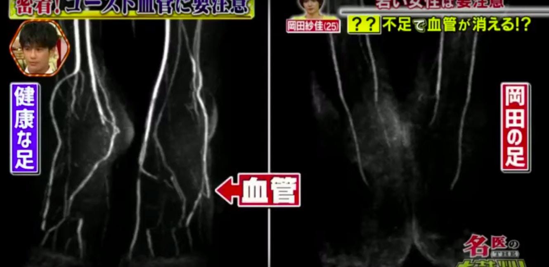 女模家被拍…穿短裤「腿开到变三角裤」!大腿一路看进去 医生吓坏:双脚血管消失中!插图7