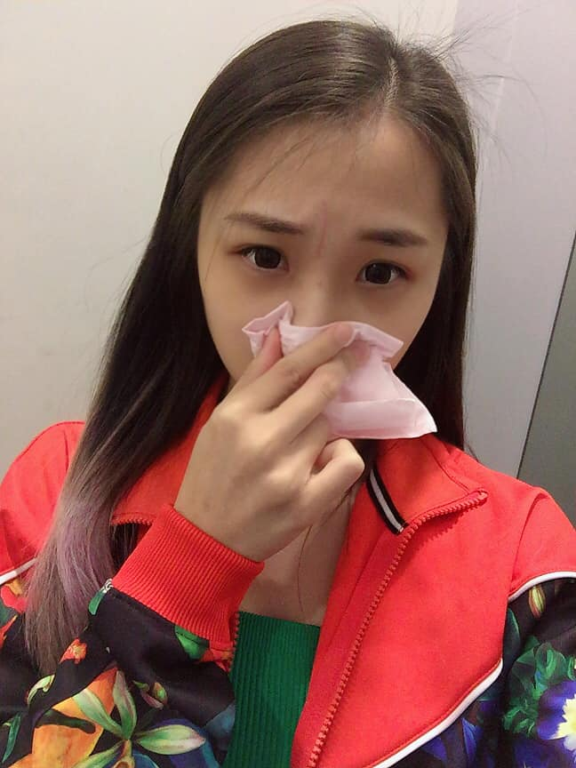 新歌拥抱悲痛过去 萧敬腾师妹李艾薇曾出意外脸缝21针 - 收藏派